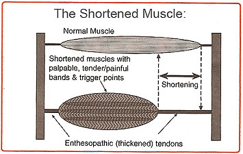 Fig 4. Shortened muscle syndrome (source: www.istop.org/education.html)